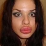 Самые большие губы в мире