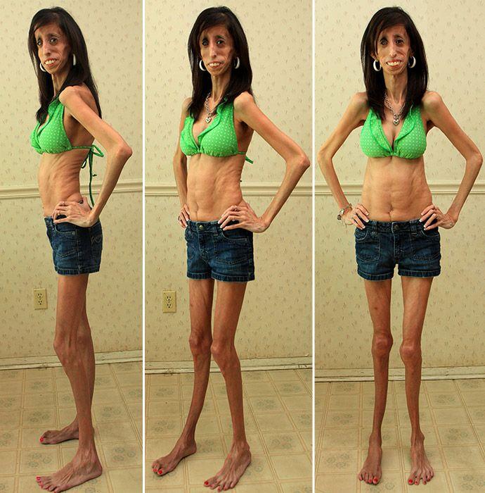 Самый худой человек в мире
